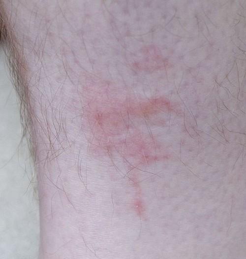bedbug bites pictures